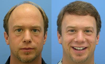 Implante Capilar Masculino